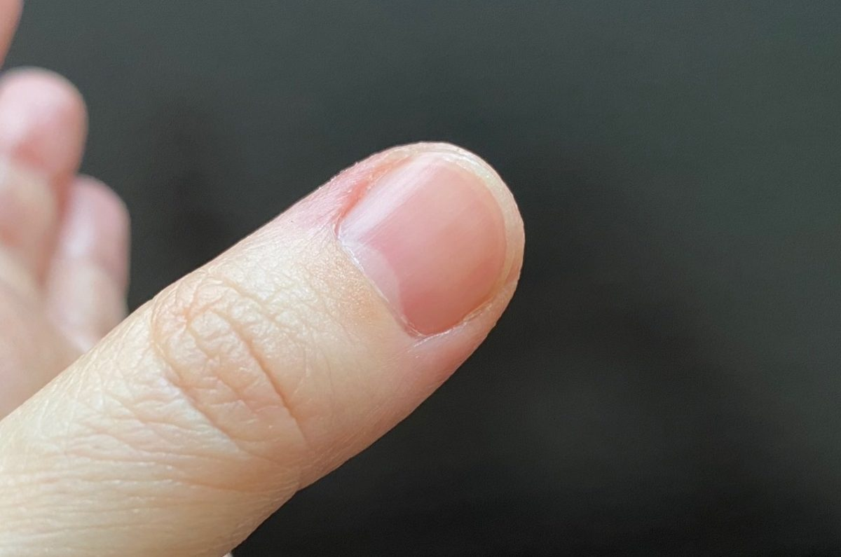 ロコベースを使用した後の指先の状態(3日後)